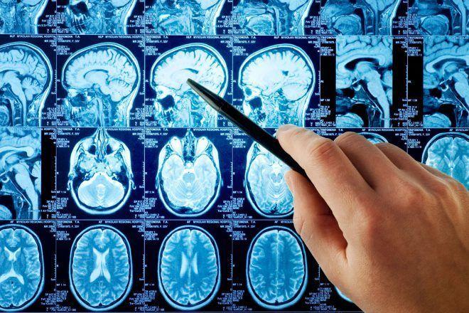 Исследование мозга во время месячных