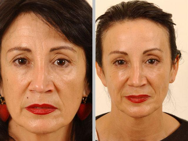Ботокс для лица до и после
