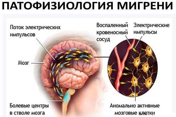 Возникают мигрени