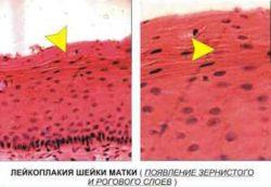 Симптомы при эрозии шейки матки у женщин