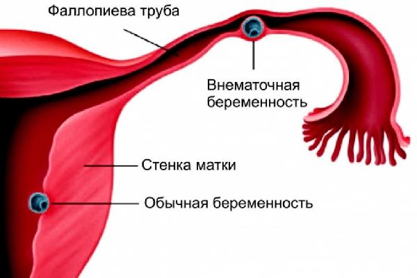 Кровотечение после месячных: причины