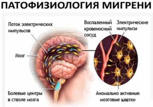 Мигрень его симптомы и лечение