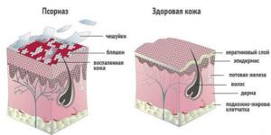 Здоровые и пораженные ткани