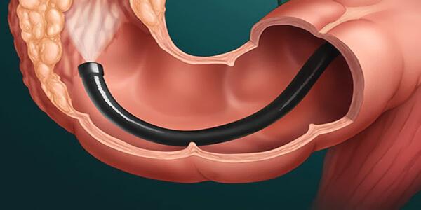 Колоноскопия во время месячных