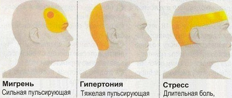 Боль в затылочной части головы справа