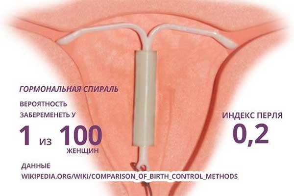 Беременность со спиралью