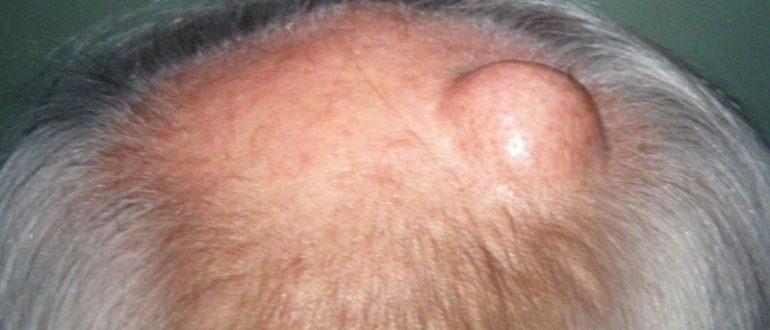 На голове появилась болезненная шишка