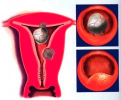 Что называют фиброзом матки