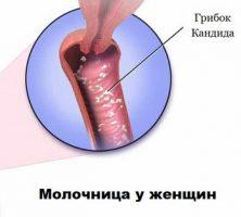 Может ли молочница вызвать цистит