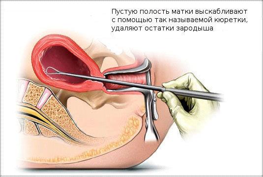 Выскабливание для прерывания беременности