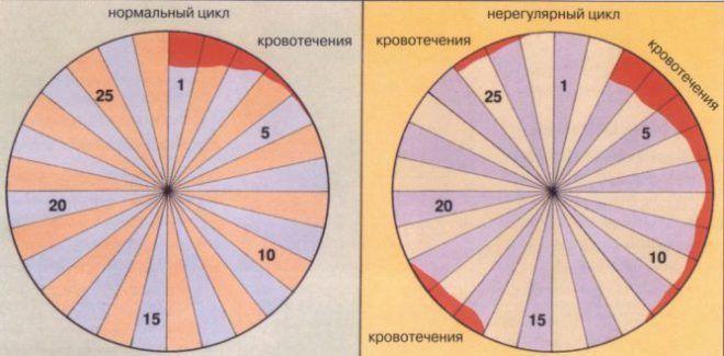 Классификация нарушений менструального цикла