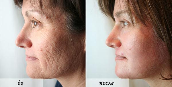 Лазерная шлифовка лица до и после