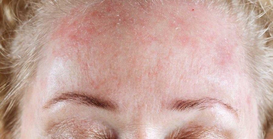 Сайт о красоте и здоровье!,Псориаз на лице: способы лечения