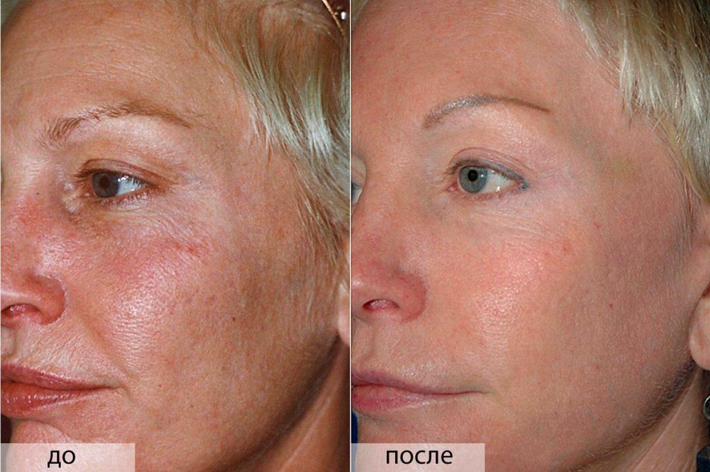 Кислотный пилинг для лица фото до и после