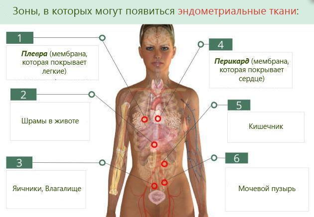 Комбинированный эндометриоз