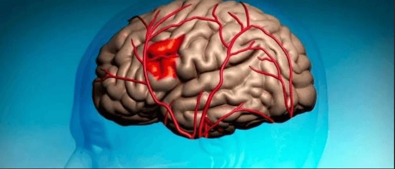 Почему болит правое полушарие головы