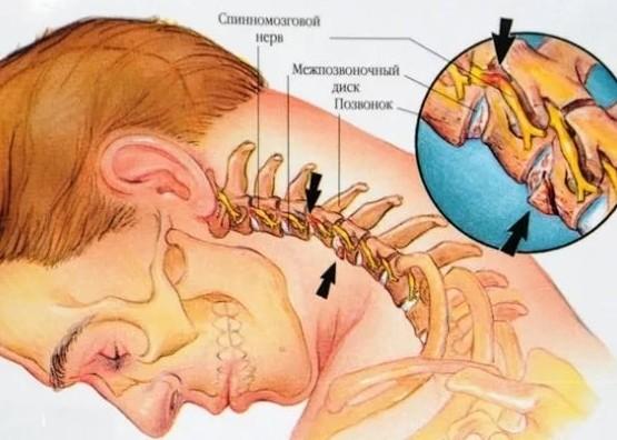 Что делать если сильно болит шея сзади