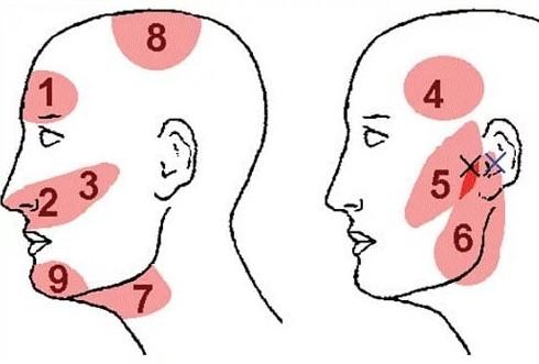 Что делать если болит голова в области висков