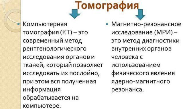Томография