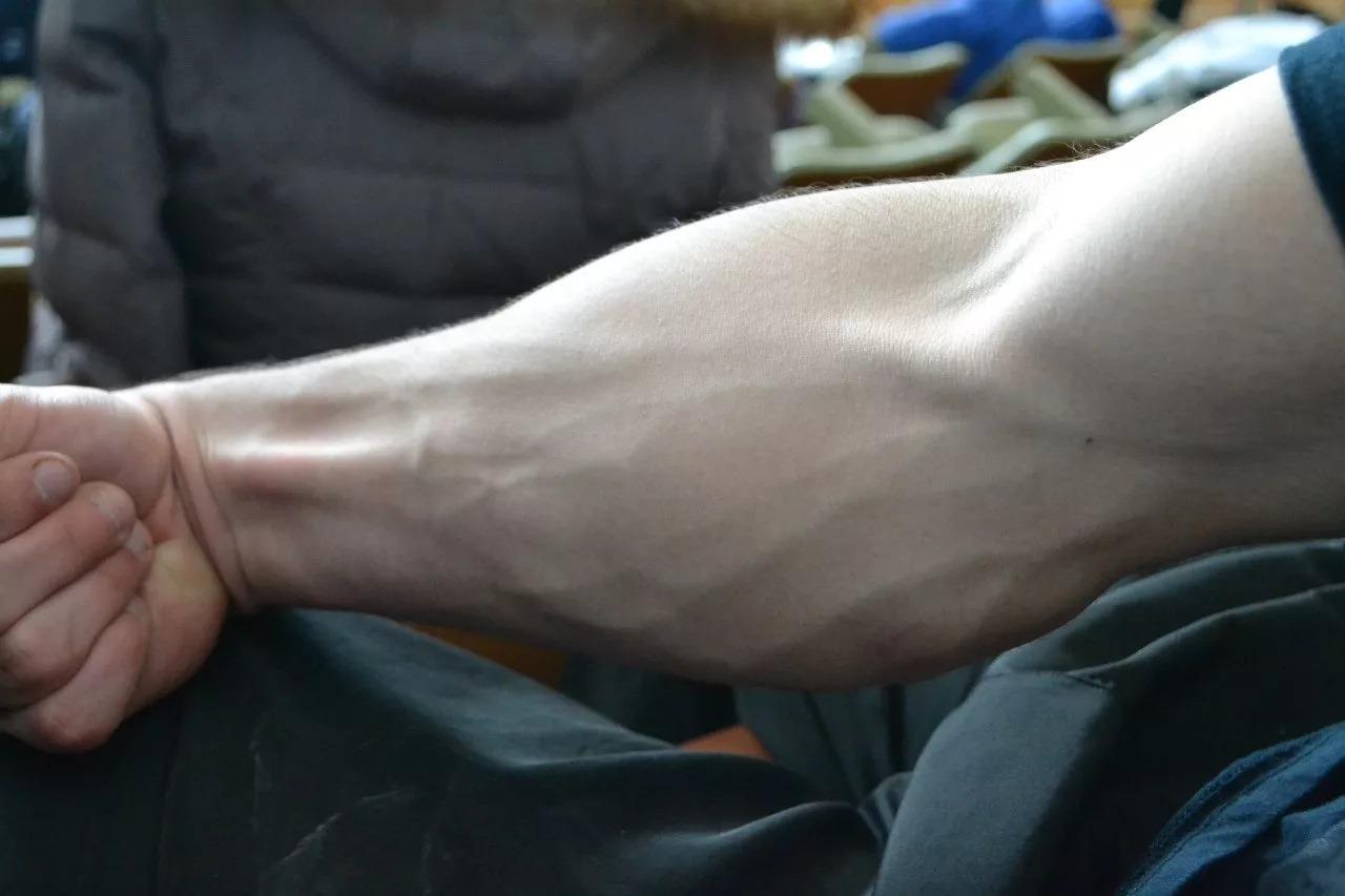 Где находится предплечье: его анатомия и травмы