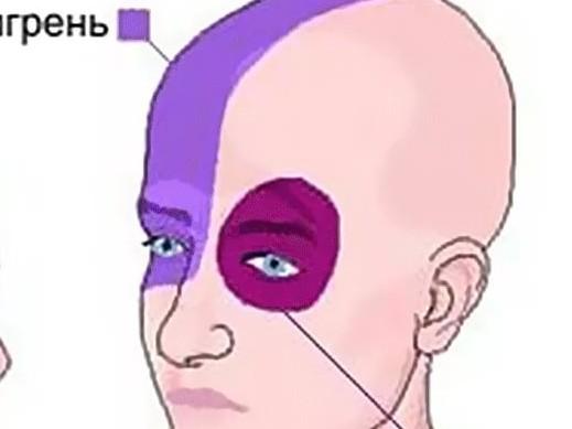 Головная боль отдает в глаз