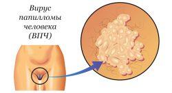 Вакцина гардасил в качестве защиты от папилломы и рака шейки матки
