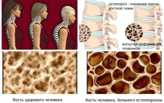 Остеопороз при климаксе у женщин