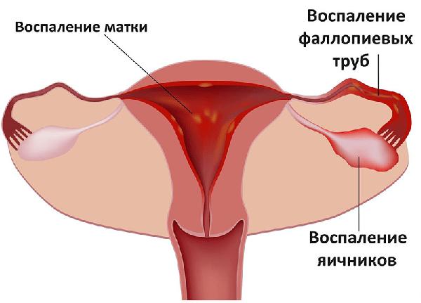Эндометриоидная киста левого и правого яичника