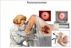Что такое атрофия шейки матки