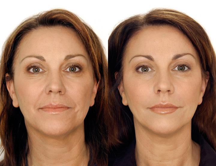 Сайт о красоте и здоровье!,Филлеры в скулы описание процедуры, фото до и после