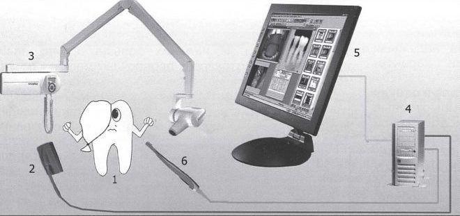 Рентгеновское исследование в стоматологии
