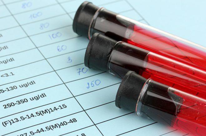 Содержания в крови ХГЧ