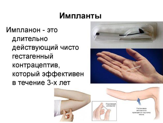Противозачаточный имплант: цена, описание, отзывы