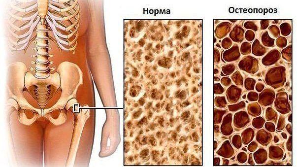 Степень развития остеопороза