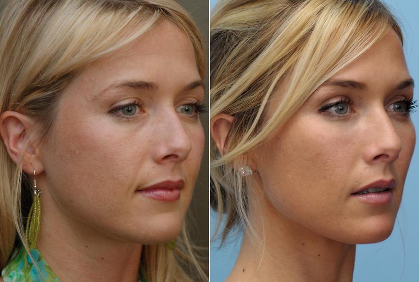 Коррекция скул фото до и после