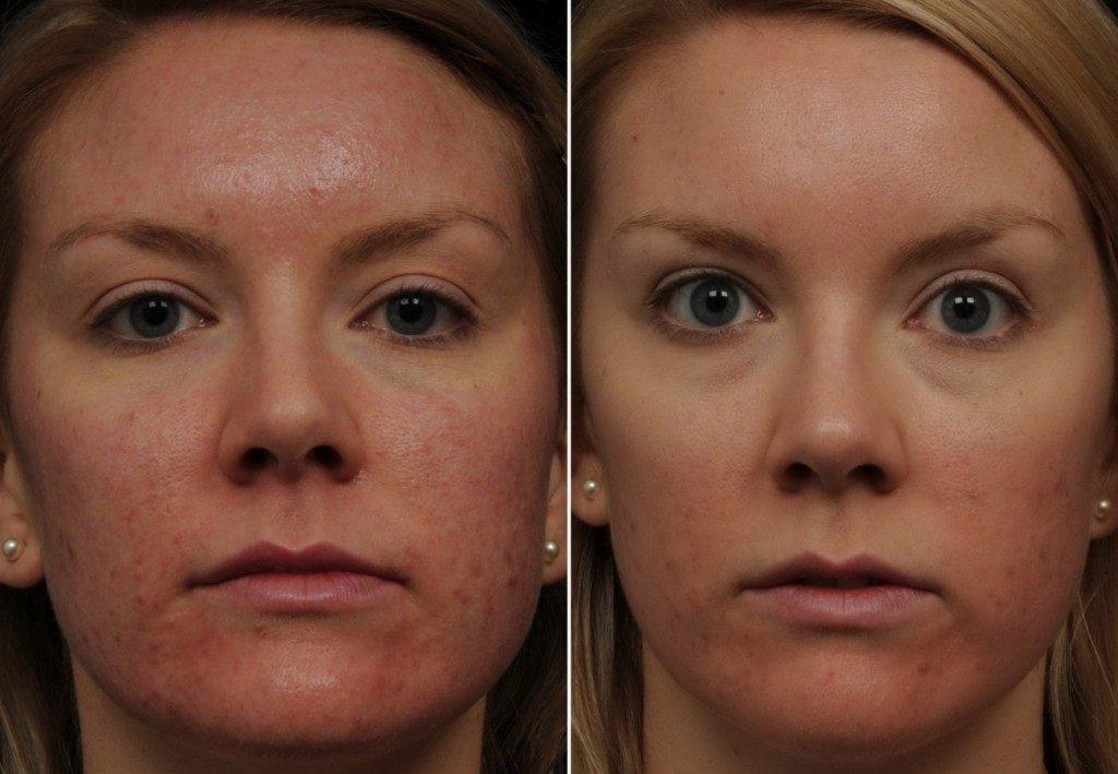 криотерапия лица фото до и после