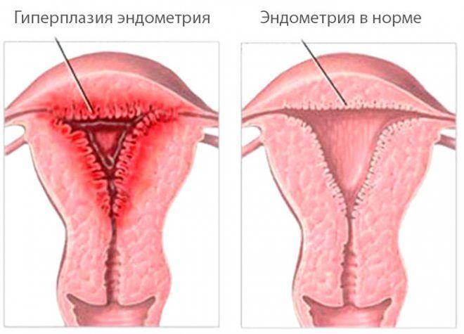 Гиперплазия функционального слоя