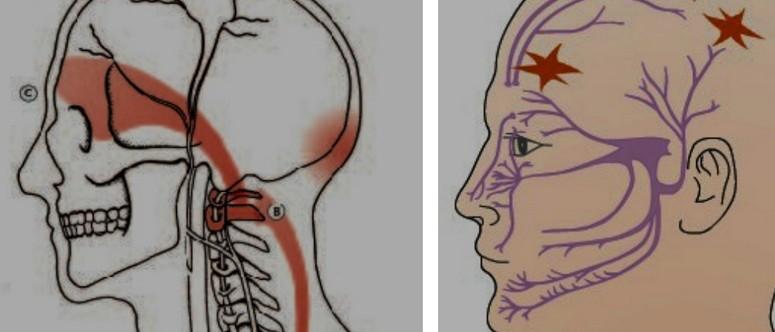 Стреляющая боль в голове с левой стороны