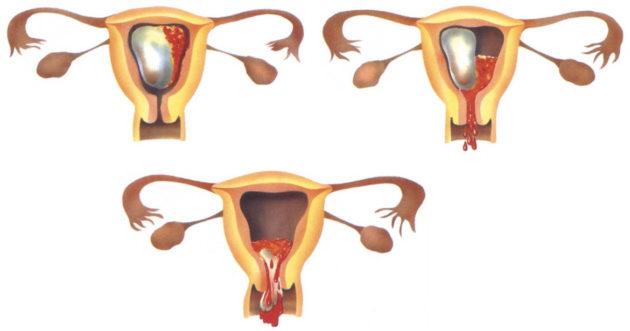 Миролют: отзывы при прерывании беременности, инструкция