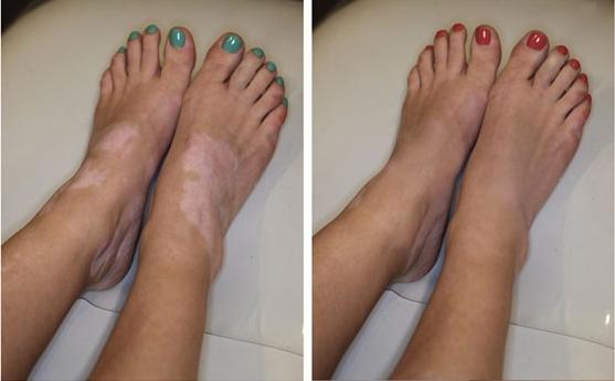 Сайт о красоте и здоровье!,Витилиго: что такое, причины возникновения, лечение