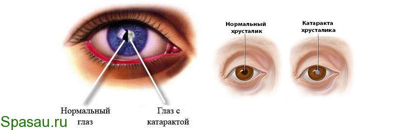 Профилактика и лечение катаракты