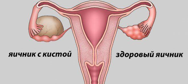 Появление кисты яичника