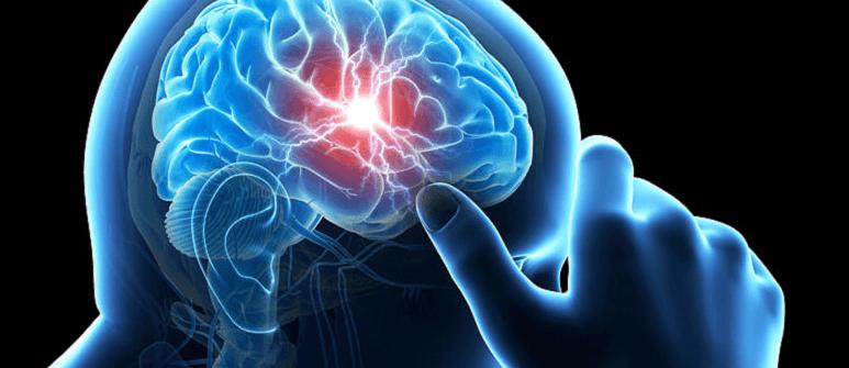 К какому врачу обращаться при мигрени