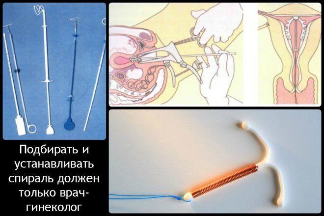 Маточная спираль с прогестероном