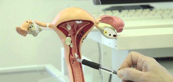 При менструациях врач не может определить нормальное положение матки