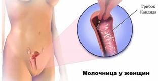 Молочница (кандидоз) - поражение слизистой влагалища грибком Candida