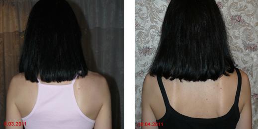 До и после применения горчичной маски