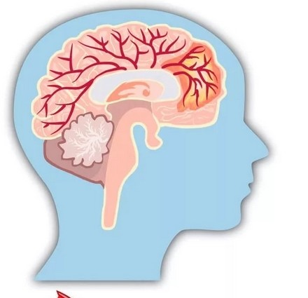 Почему сильно кружится голова и от чего это может быть