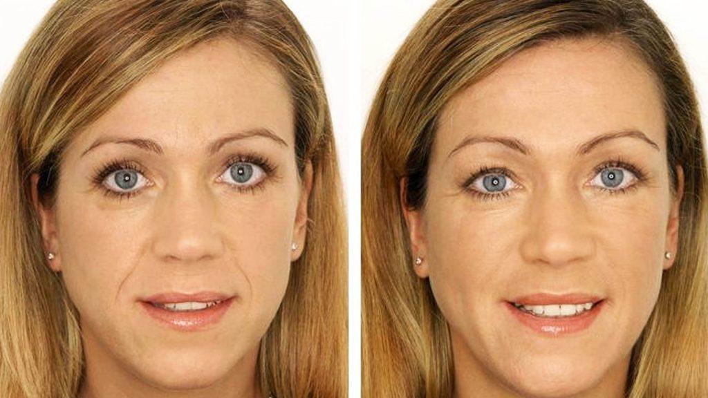 микротоки для лица до и после
