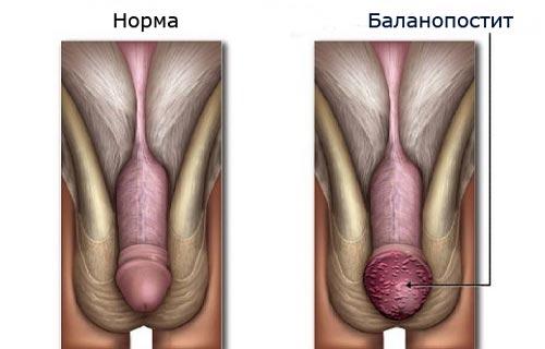 Симптомы баланопостита